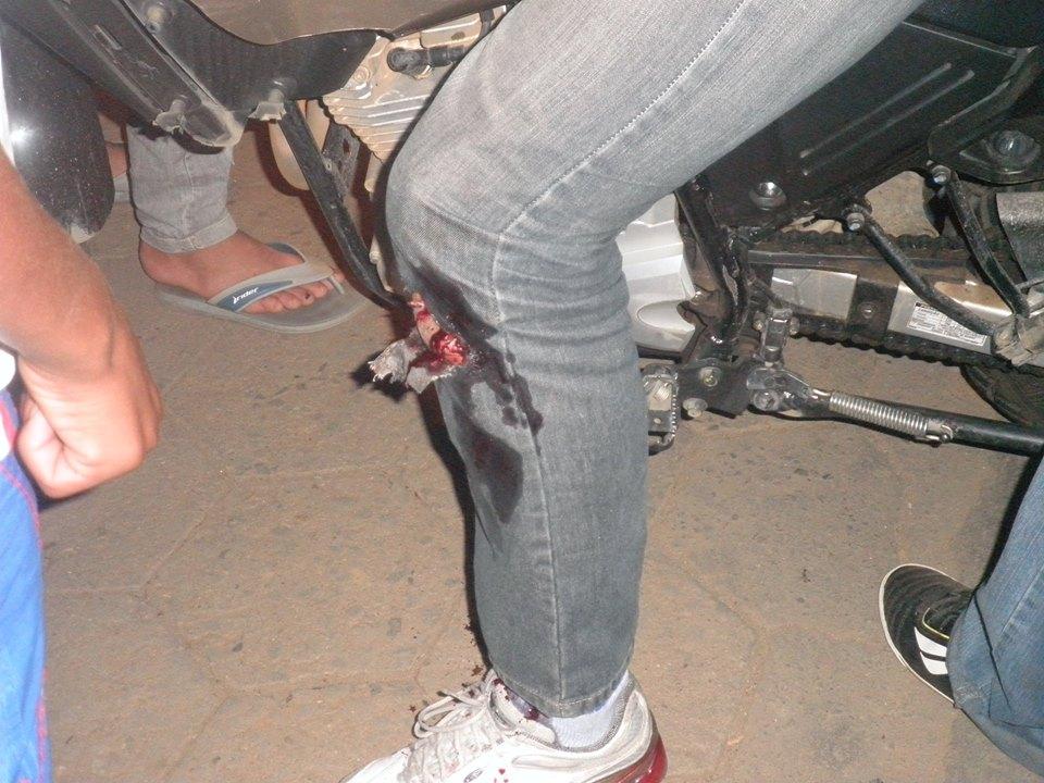 acidente ferv 02